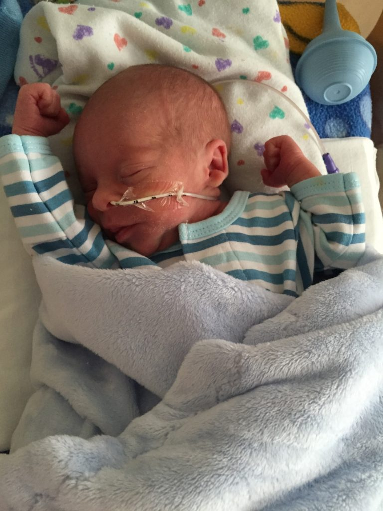 {Our sweet little love - so excited to see him without the NG tube in...}